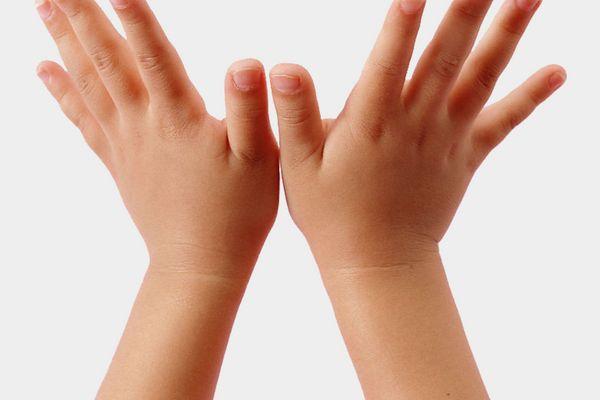chăm soc da tay của bé