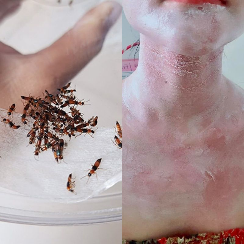 vết cắn kiến ba khoang