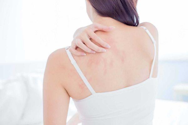 alergia-a-roupas-8-possiveis-causas-de-alergia-na-pele