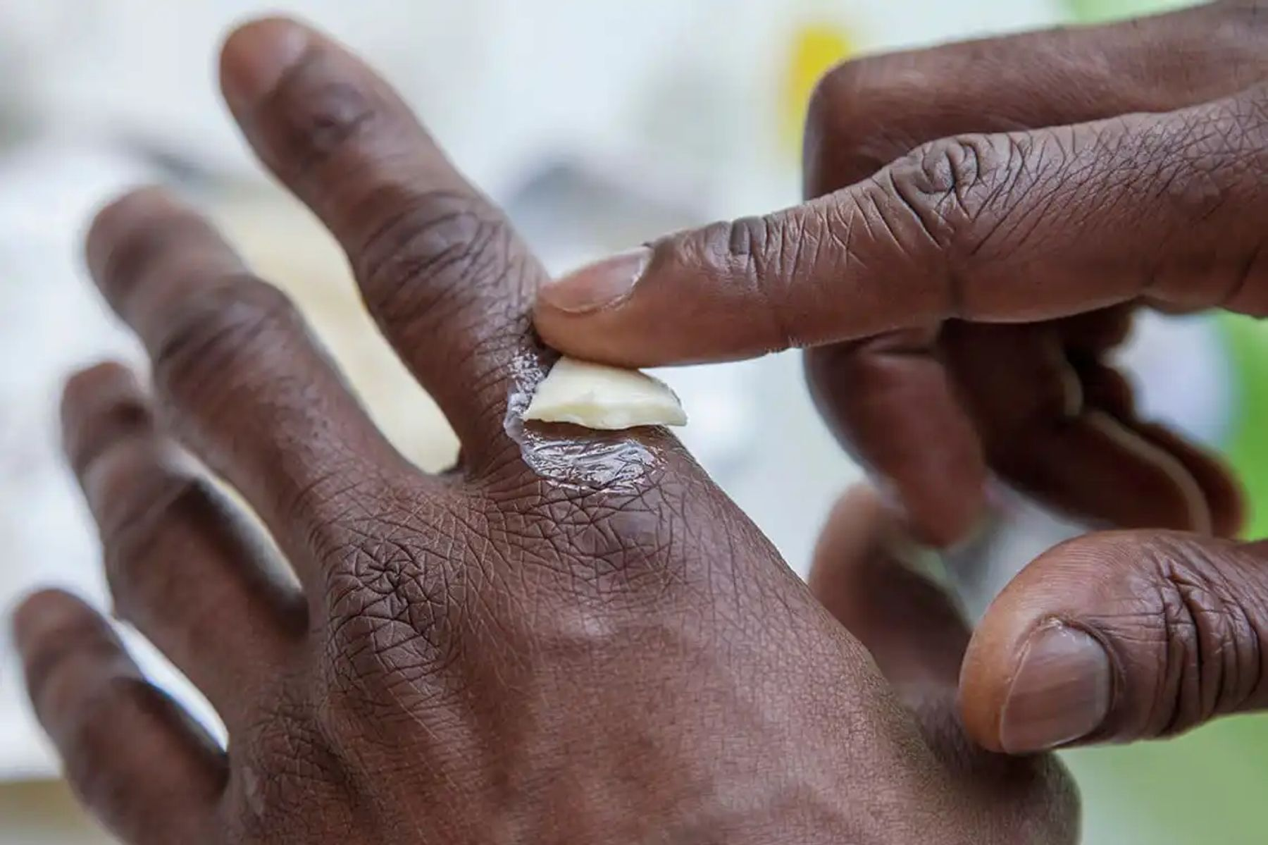 Step 1: A person is rubbing a white substance over their left forefinger knuckle with the forefinger of their right hand