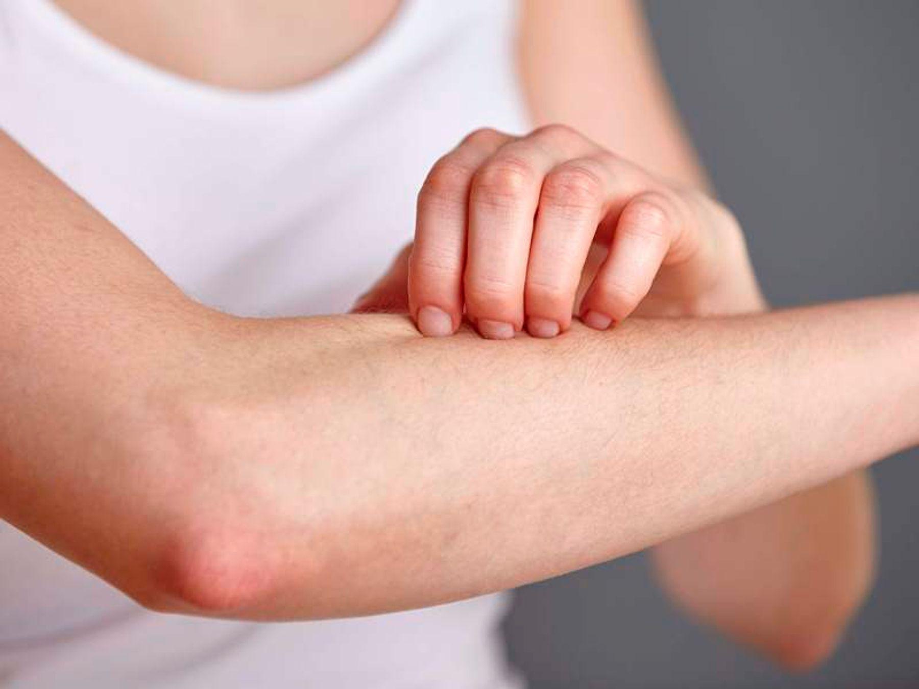 các bệnh ngoài da